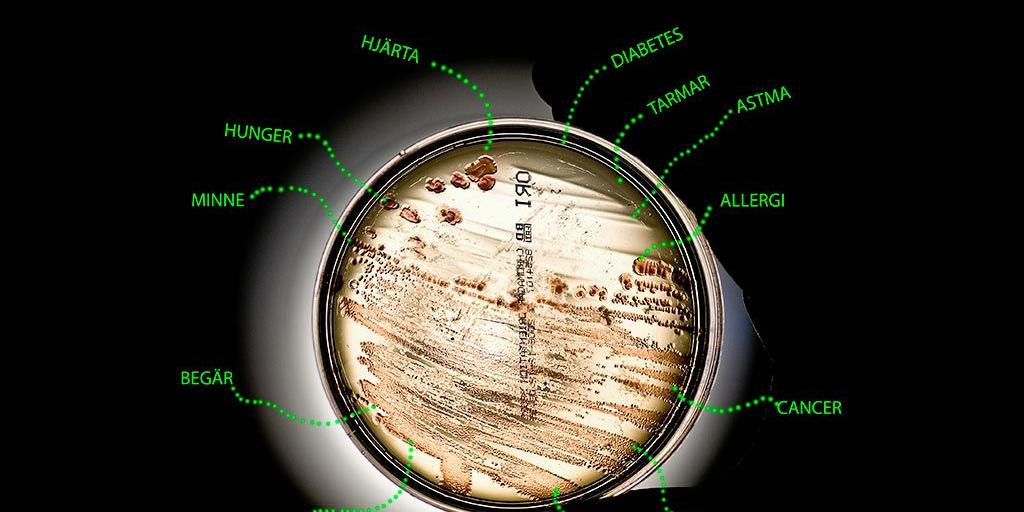 tarmbakterier och hjärnan