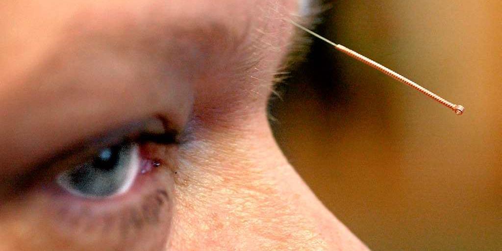 akupunktur mot sömnproblem